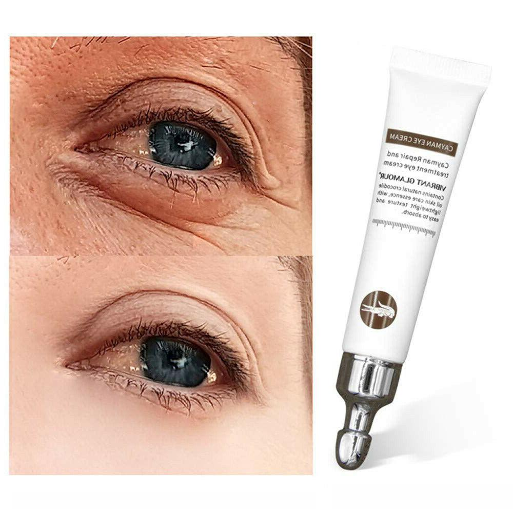 Magic Eye Cream Eye Serum Dark Circles Puffiness Wrinkles Ba