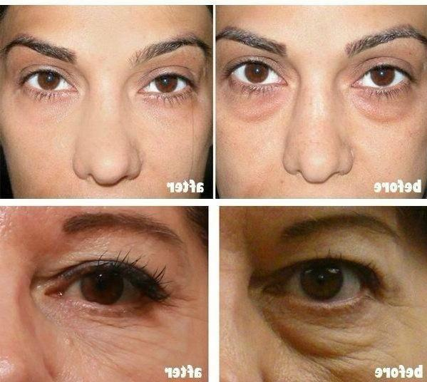 Under Dark Circles Feet Bags Aging