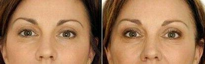 Under Eye Dark Crows Feet Bags Lift Firm Aging