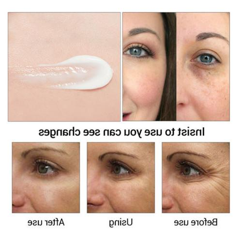US Eye Firming Circles Puffiness Eye Care